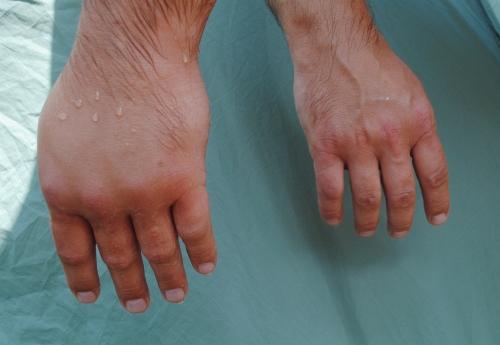 glikokortykosteroidy wziewne stosowane w alergii