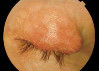 Jęczmień wewnętrzny; wcentralnej iskroniowej części powieki górnej widoczne dwa guzki zapalne powodujące obrzęk izaczerwienienie skóry zartykułu
