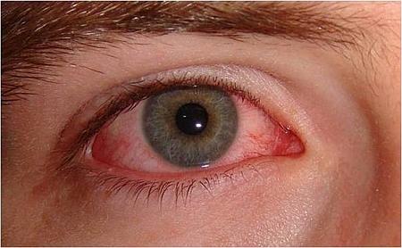 Przekrwienie spojówki gałkowej wbakteryjnym zapaleniu spojówek