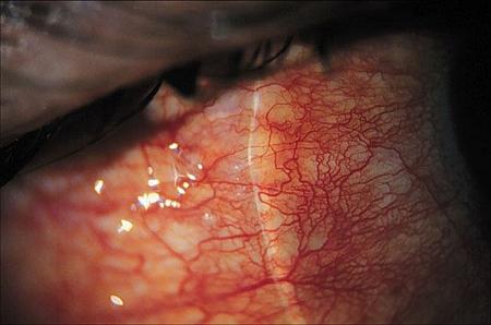 Ostre bakteryjne zapalenie spojówek