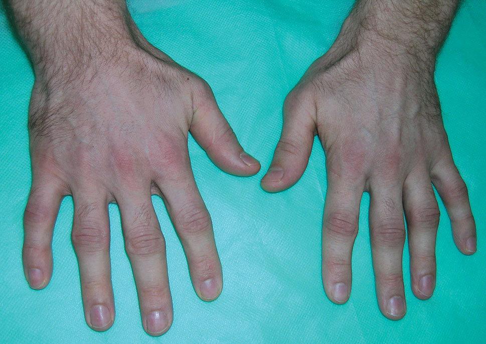 Jak schudnąć z palcy u rąk