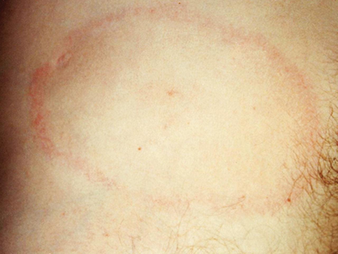 Borelioza Z Lyme Choroby Przenoszone Przez Kleszcze
