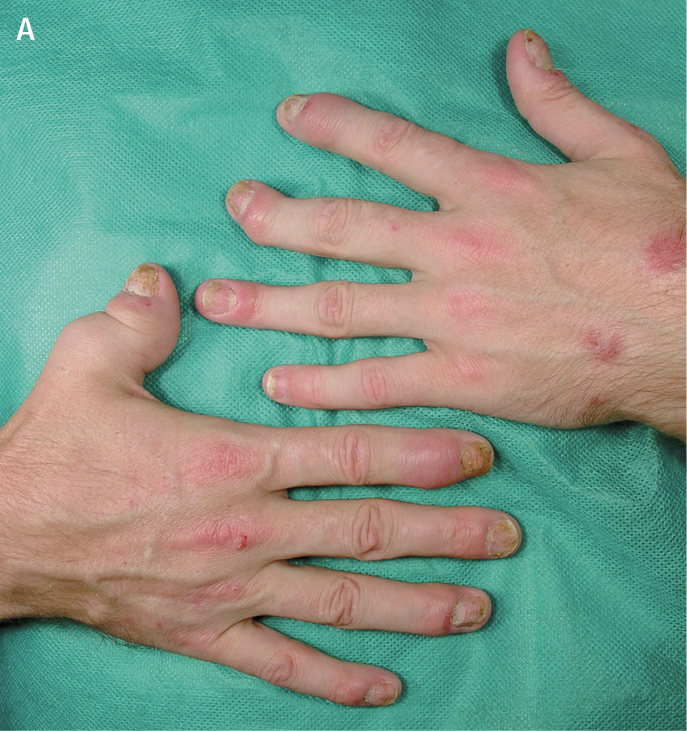 jak schudnąć z rąk w domu? {edycja + zdjęcia} - strona 1   Mangosteen