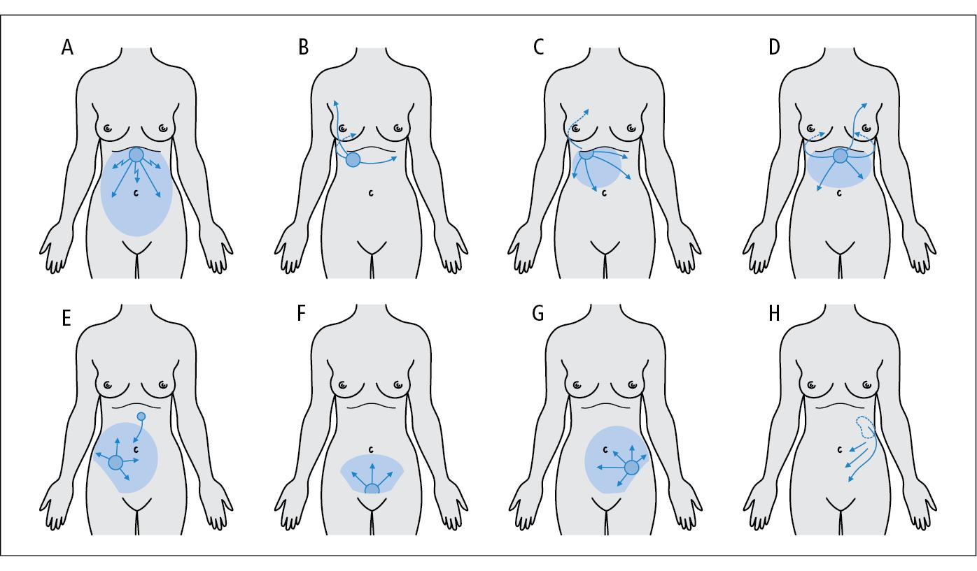 Dolor genital en la mujer - slamsnetorg