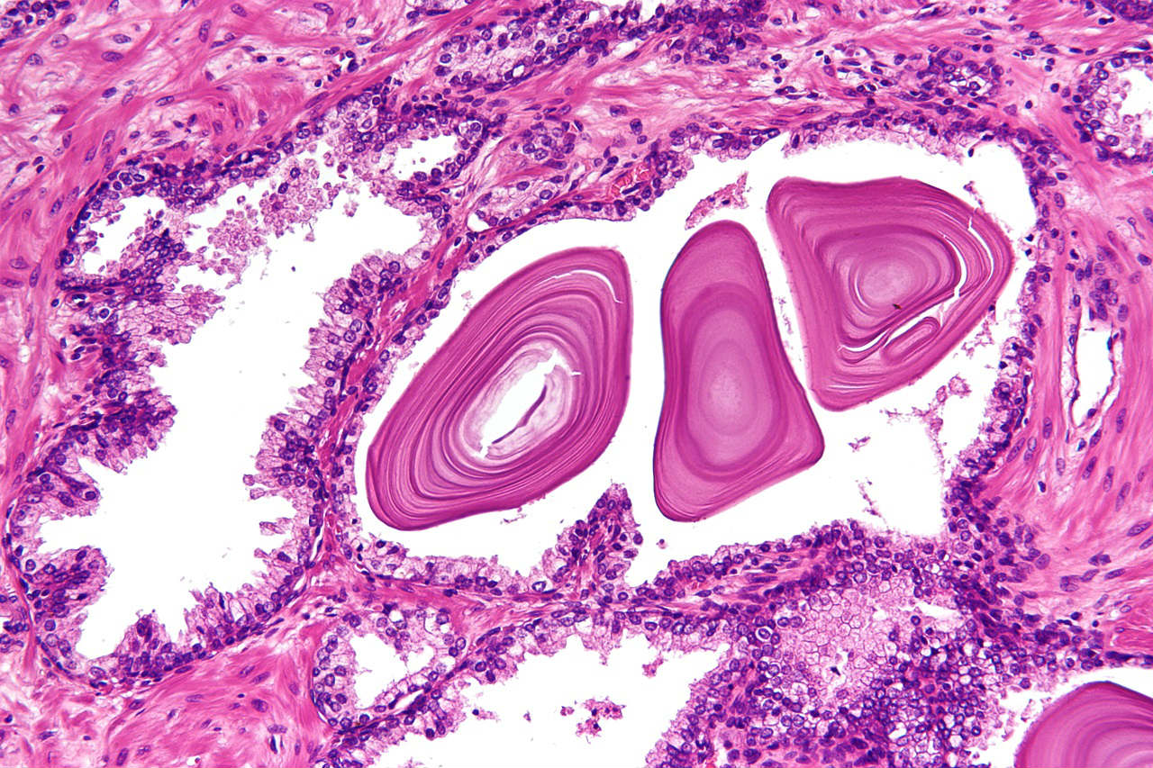 corpora amylacea