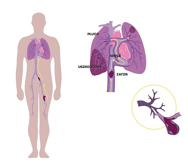Tętnica płucna zamknięta przez skrzeplinę