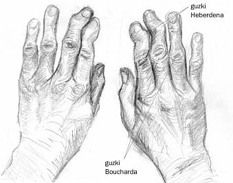 Choroba Zwyrodnieniowa Stawów Reumatologia Medycyna