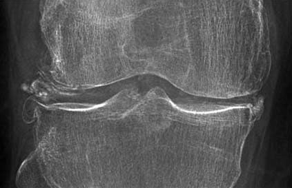 Chondrokalcynoza, Osteofity