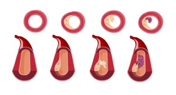 Blaszki miażdżycowe, bogate wcholesterol ikomórki piankowate, łatwo pękają