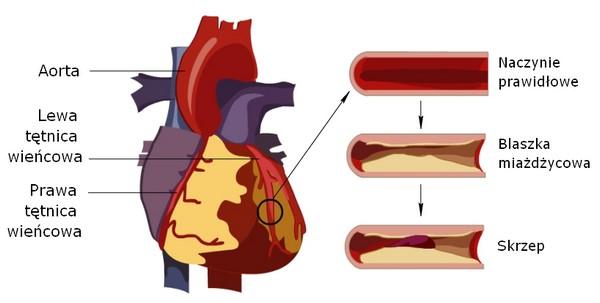 Choroba wieńcowa - naczynie prawidłowe, blaszka miażdzycowa, skrzep
