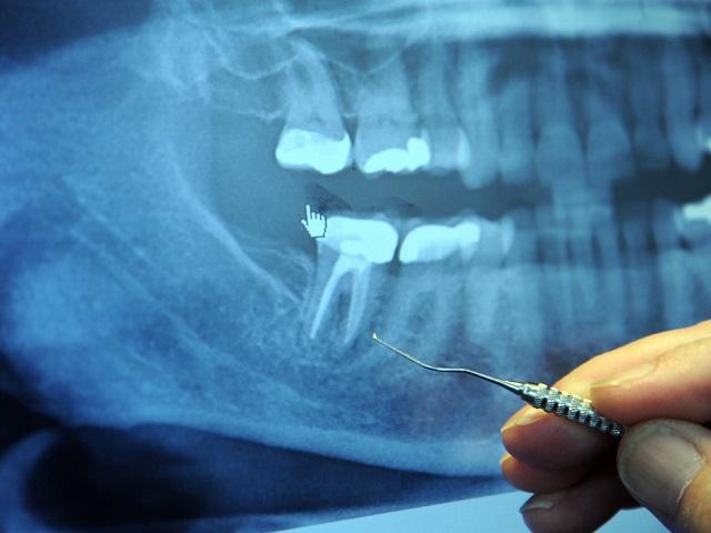 badd tooth