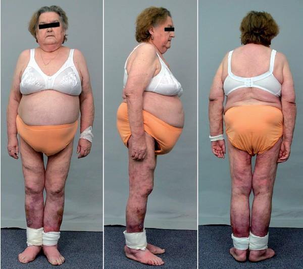 Zespół cushinga jak schudnąć