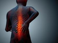Zapalny Ból Pleców Od Czego Zacząć Diagnostykę Leczenie