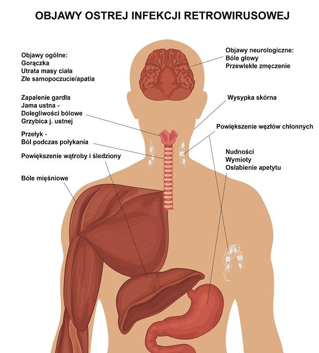 HIV, ostra choroba retrowirusowa