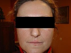 Atopowe zapalenie skóry (wyprysk atopowy, egzema)