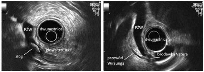 Ultrasonografia endoskopowa