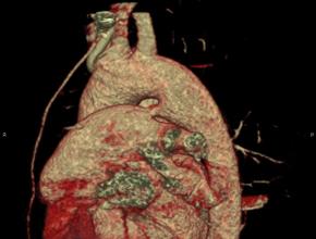 Młoda kobieta zprzetrwałym przewodem tętniczym