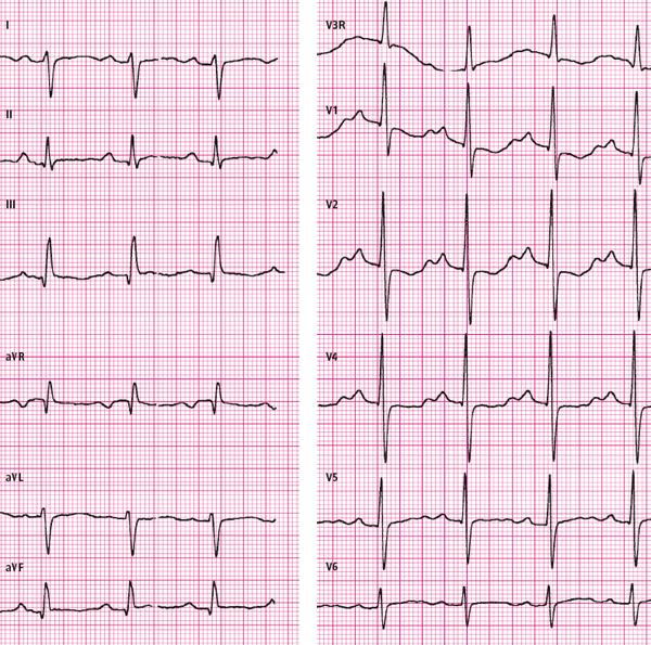 Podłączenie 12 odprowadzeń EKG