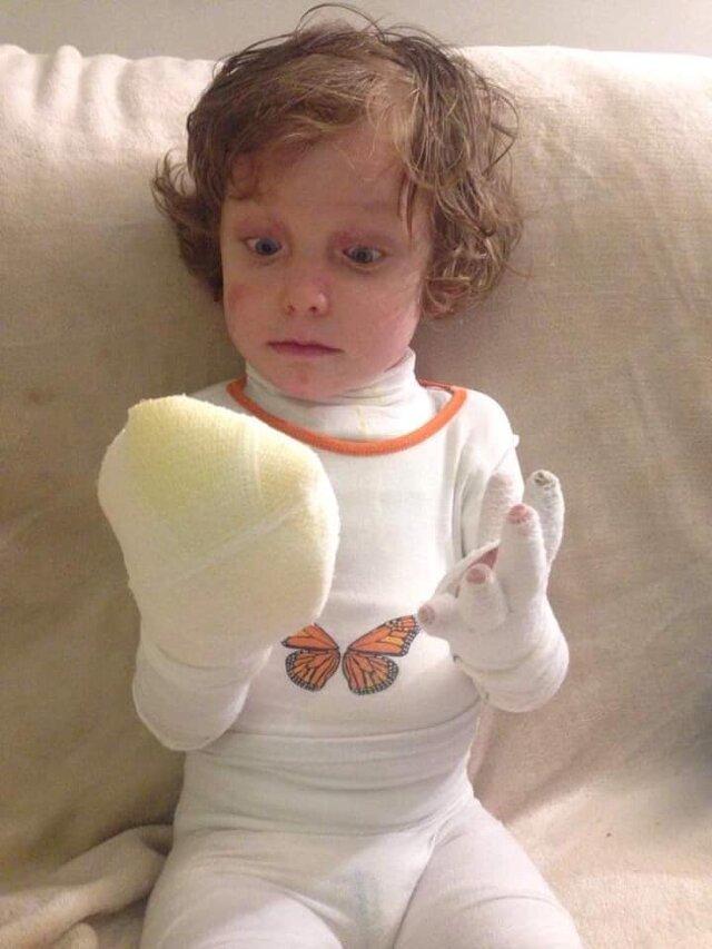4-letni Krzyś chory na EB.