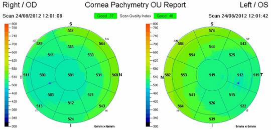 Pachymetria rogówki - mapa grubości rogówki uzyskana przy pomocy OCT