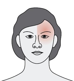 Ból głowy, migrena