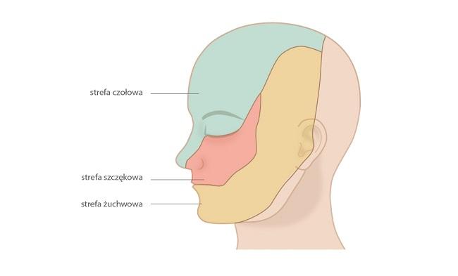 Klasyczny nerwoból nerwu trójdzielnego