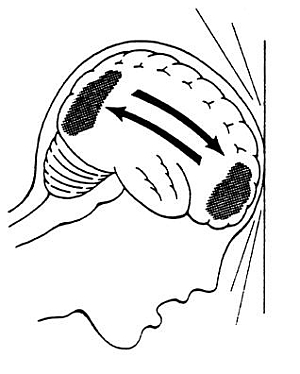 Przemieszczenie mózgu wosi przednio-tylnej wywołane gwałtownym spłaszczeniem czaszki wwyniku dużej siły urazu