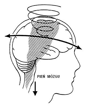Ruch rotacyjny półkul mózgu oraz przesunięcie pnia mózgu do dołu iz powrotem wczasie urazu głowy