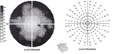 Statyczne pole widzenia – obwodowe zawężenie pola widzenia oróżnym stopniu nasilenia wprzebiegu pourazowej neuropatii nerwu wzrokowego