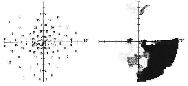 Statyczne pole widzenia – ubytek altitudinalny wkwadrancie dolno-nosowym