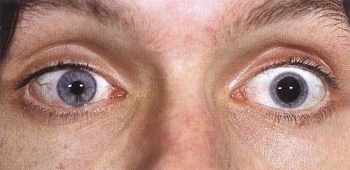 Szeroka źrenica woku zpourazową neuropatią nerwu wzrokowego
