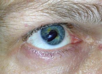 Zniekształcona źrenica po urazie oka