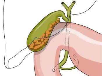 Budowa I Funkcje Trzustki Gastrologia Medycyna Praktyczna Dla