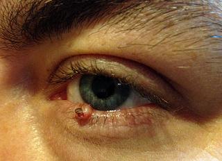Rogowiak kolczystokomórkowy powieki dolnej