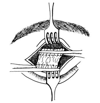 Schemat wypreparownego rozścięgna dźwigacza powieki górnej zdostępu przezskórnego. Linie przerywane ograniczają fragment przeznaczony do wycięcia