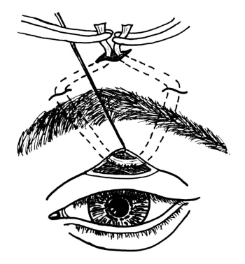 Schemat techniki operacyjnej korekcji opadnięcia powieki górnej przez podwieszenie na paśmie powięzi skroniowej