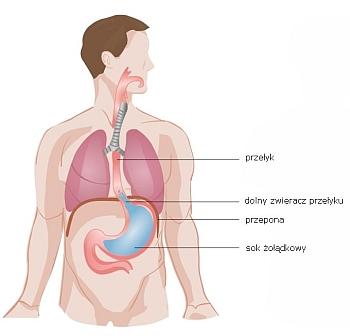 Choroba refluksowa przełyku (refluks)
