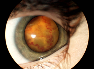Choroba Coatsa widoczne liczne tętniakowato rozdęte ikręte naczynia siatkówki iodwarstwienia siatkówki zpowodu gromadzenia się przesięków pod nią przesięku
