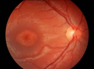 """Choroba Stargardta – ziarniste przebarwienia iodbarwienia wplamce wpostaci obrazu """"wolego oka"""""""