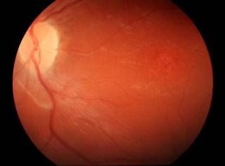Choroba Stargardta – zmiany wplamce siatkówki owyglądzie kutego brązu