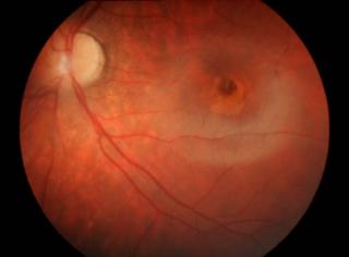 """Dystrofia czopkowa – wplamce widoczne są ziarniste przebarwienia iodbarwienia wpostaci obrazu """"wolego oka"""""""