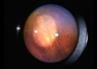 Siatkówczak – zanik guza wobwodowej części siatkówki po krioterapii