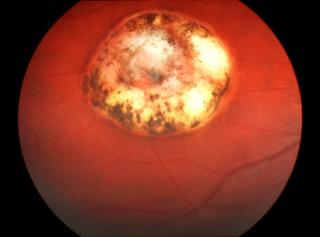 Toksoplazmoza oczna – wplamce siatkówki widoczna okrągła blizna owysztancowanych brzegach iz dużymi przebarwieniami typowa dla przebytego zarażenia toksoplazmozą
