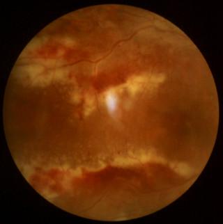 Zapalenie siatkówki wywołane wirusem cytomegalii – widoczne rozległe obszary zapalenia siatkówki zżółtawymi wysiękami itowarzyszącymi krwotokami, układające się wzdłuż łuków naczyniowych wokół plamki zapalne pochewki wokół naczyń siatkówki (tzw. objaw pizzy)