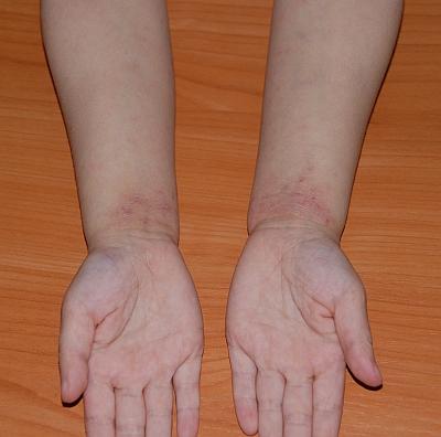 testy alergiczne dla dzieci kraków