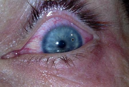 Metaliczne ciało obce wrogówce lewego oka