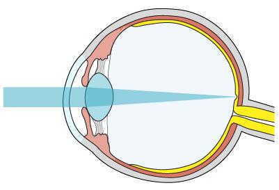 exerciții oculare restaurate vederea