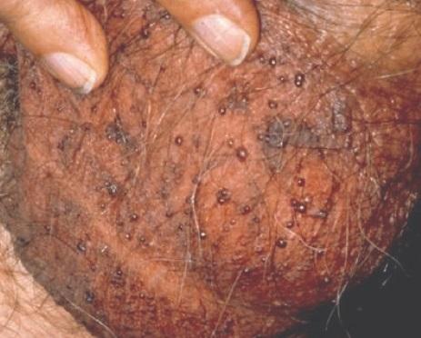Tökmag mézzel, mint gyógyszer a prosztatagyulladáshoz