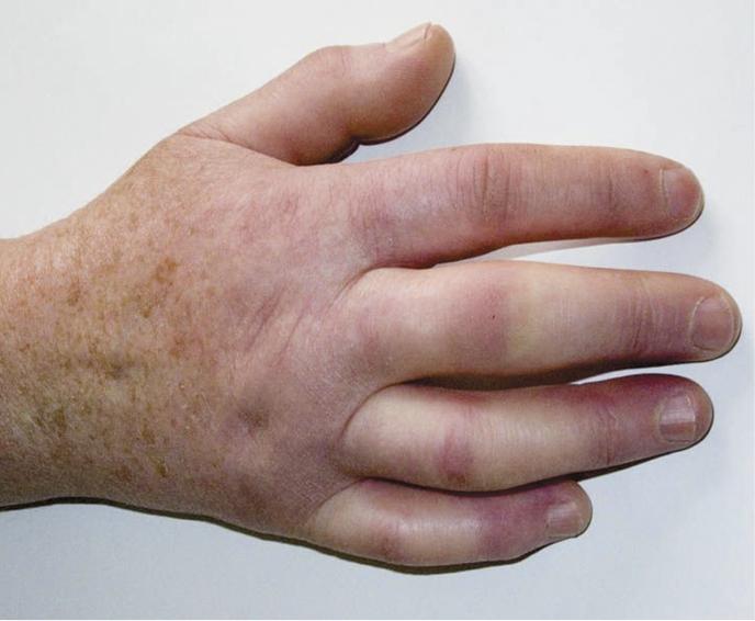 Znalezione obrazy dla zapytania włóknienie skóry