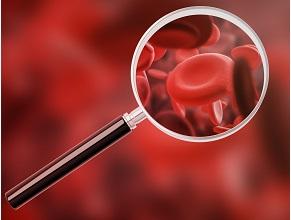 Профілактика іфактори ризику посттромботичного синдрому усвітлі актуальних досліджень